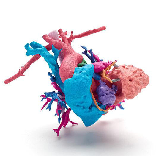 This full color model is a heart of a young girl named Jemma with a complex heart defect; the heart was printed using HP's new Jet Fusion 300 / 500 3D printer to help surgeons at Phoenix Children's Hospital prepare, select the best surgical path and explain the procedure to Jemma's family. | Data courtesy of Phoenix Children's Hospital; Heart of Jemma